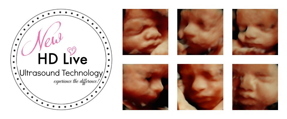 3D Ultrasound Packages- Tiny Hearts 3D